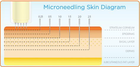 Microneedling Skin Diagram Ideal Contour Face & Body Skin Center